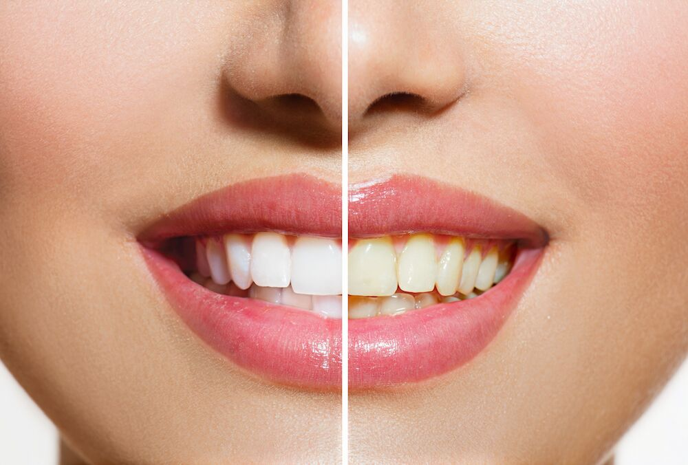Durham NC Dentist | Stained Teeth
